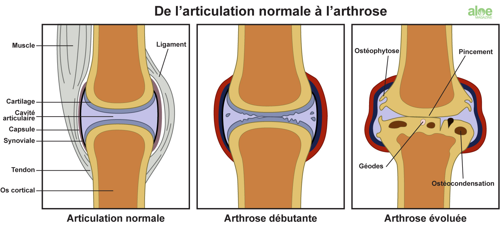 Articulations et Arthrose, dégradation du cartilage | Aloe Magazine